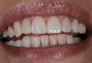 facettes-dentaires-tunisie_3b
