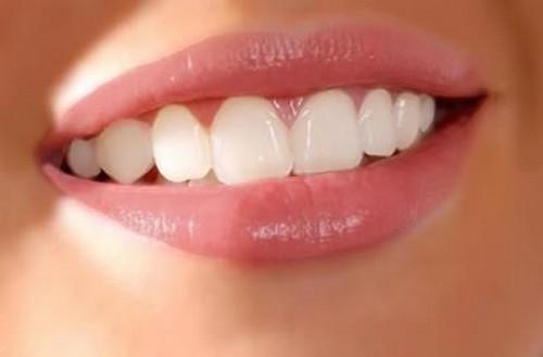 Les Facettes dentaires céramique en Tunisie: