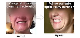 restructuration-sourire-tunisie