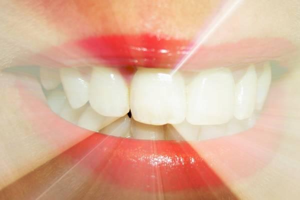 Les soins dentaires sont-ils devenus un luxe en France ?