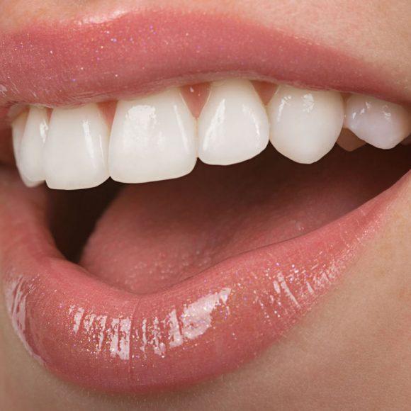 Les méthodes pour avoir un sourire étincelant :