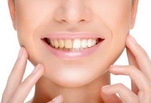 les-facettes-dentaires-tunisie